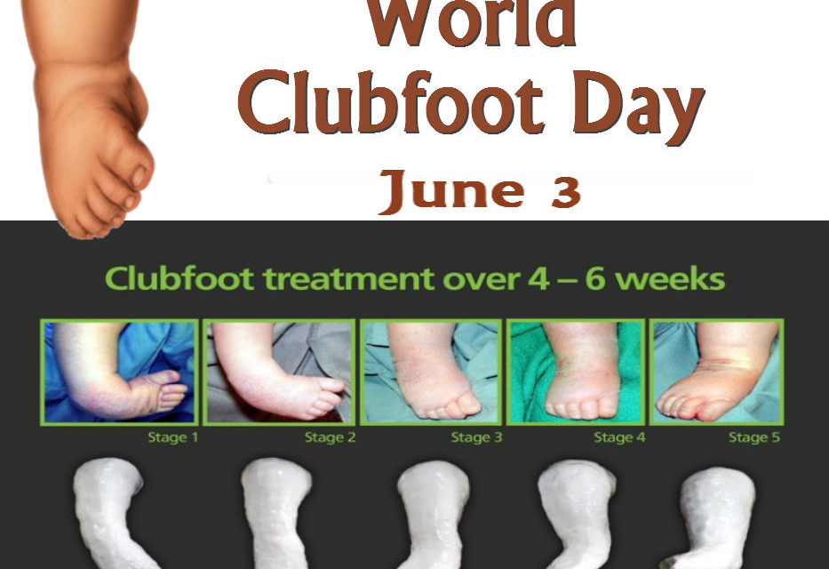 World Clubfoot Day Observed on June 3