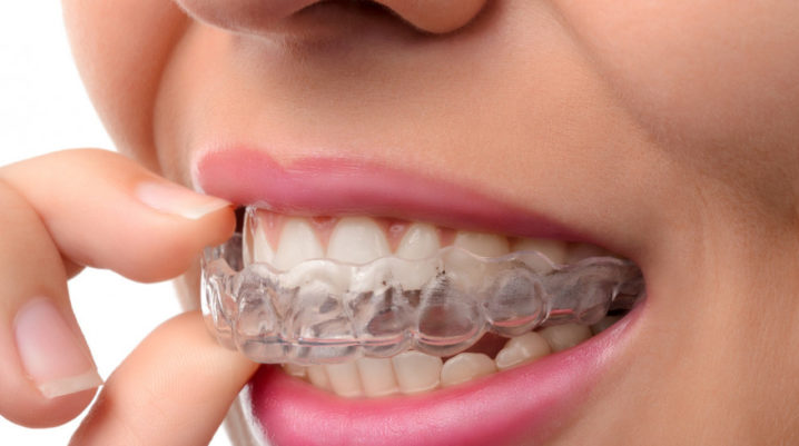 orthodontics_teachings